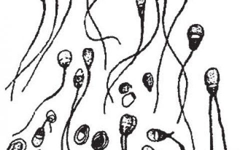 怎么验精子的质量-羊的繁殖新技术